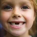 Прорізування зубів в дитини – норми в таблицях