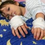 Опіки в дітей – класифікація, лікування та профілактика