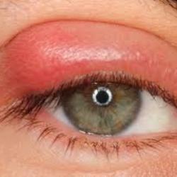 Может ли улучшиться зрение близорукость с возрастом