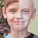 В дитини лейкоз – прогноз, симптоми та ефективне лікування