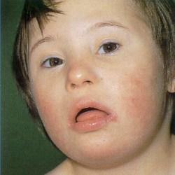 в дитини синдром Дауна