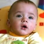 Гідроцефалія в дитини – наскільки це серйозно?