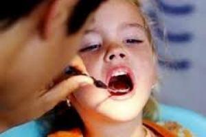 сріблення зубів дитини