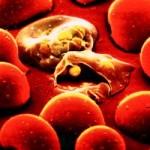 Малярія в дітей – симптоми та способи лікування