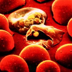 ознаки малярії у дітей