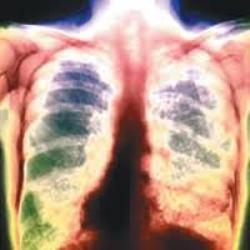 що таке туберкульоз