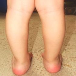 викривлення ніг в дитини