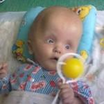 Внутрішньочерепна родова травма в дитини