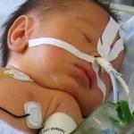 Атрезія стравоходу в дітей – наскільки це небезпечно?