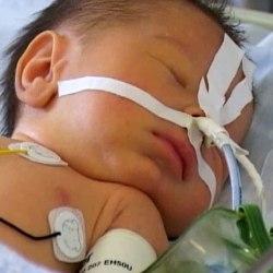 атрезія в новонародженої дитини