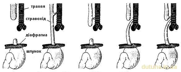форми атрезії стравоходу