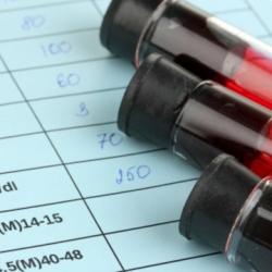 аналіз крові на сечову кислоту