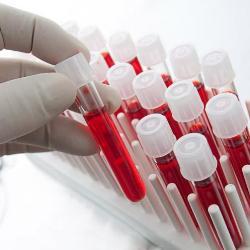Біохімічний аналіз крові дитини (ферменти): АСТ (АсАТ)