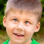 Косоокість в дітей – причини, лікування та профілактика