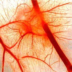 геморагічний васкуліт в дитини