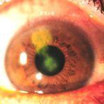Кератит у дітей – симптоми та лікування захворювання
