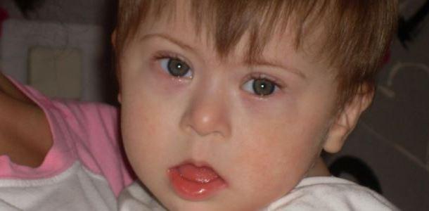 Лікування гіпотиреозу в дітей – причини, симптоми та наслідки захворювання