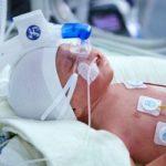 Бронхолегенева дисплазія у дітей (БЛД) – симптоми та методи лікування