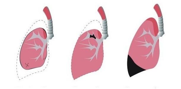 види ателектазу легень