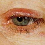 Лікування блефариту в дитини – симптоми і причини захворювання