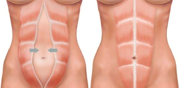 Діастаз після пологів – причини і способи лікування