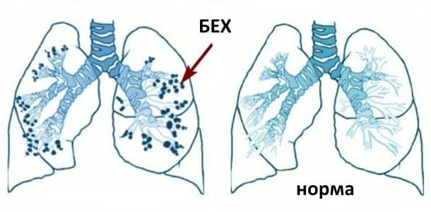 симптоми та ознаки бронхоектатичної хвороби